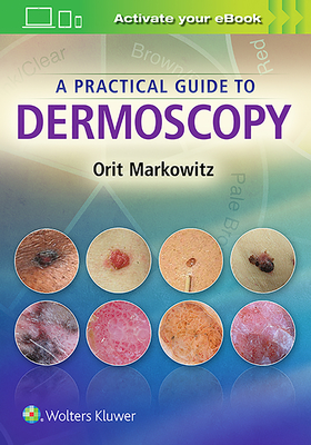 A Practical Guide to Dermoscopy - Markowitz, Orit