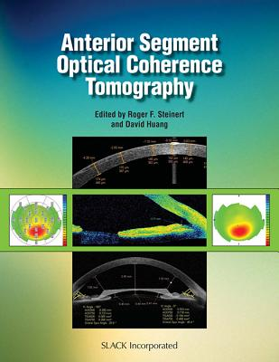 Anterior Segment Optical Coherence Tomography - Steinert, Roger, MD