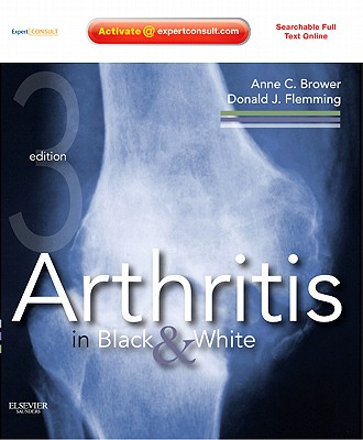 Arthritis in Black & White - Brower, Anne C, and Flemming, Donald J