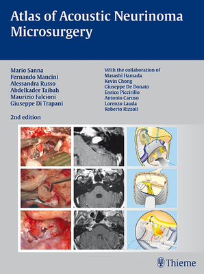 Atlas of Acoustic Neurinoma Microsurgery - Sanna, Mario