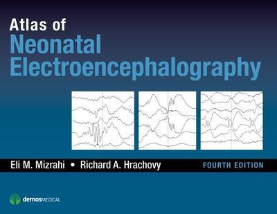 Atlas of Neonatal Electroencephalography - Mizrahi, Eli M., and Hrachovy, Richard A.