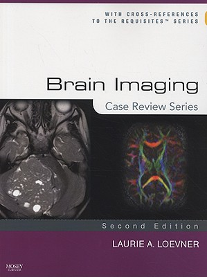 Brain Imaging: Case Review Series - Loevner, Laurie A