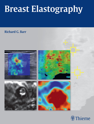 Breast Elastography - Barr, Richard G