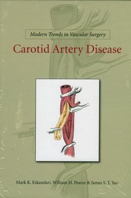 Carotid Artery Disease - Pearce, William H., and Yao, James S. T., and Matsumura, Jon S.