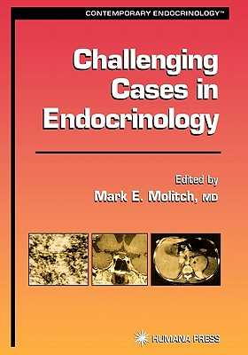 Challenging Cases in Endocrinology - Molitch, Mark E. (Editor)