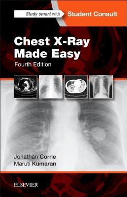 Chest X-Ray Made Easy - Corne, Jonathan, and Kumaran, Maruti
