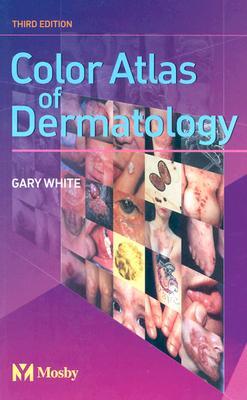 Color Atlas of Dermatology - White, Gary M