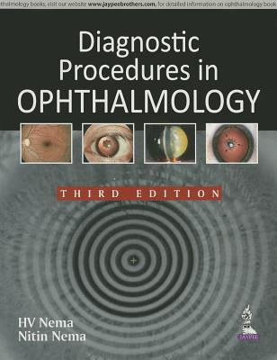 Diagnostic Procedures in Ophthalmology - Nema, H. V., and Nema, Nitin