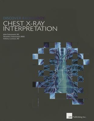 Discover Radiology: Chest X-Ray Interpretation - Dobranowski, Julian