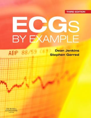 Ecgs by Example - Jenkins, Dean, and Gerred, Stephen John
