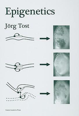 Epigenetics - Tost, Jorg (Editor)