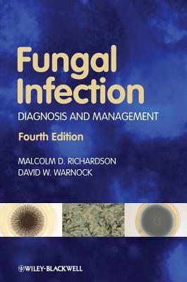 Fungal Infection: Diagnosis and Management - Richardson, Malcolm D