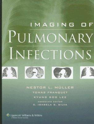Imaging of Pulmonary Infections - Muller, Nestor L, MD, PhD (Editor), and Franquet, Tomas, MD (Editor), and Lee, Kyung Soo, MD (Editor)