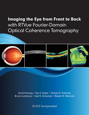 Imaging the Eye from Front to Back with Rtvue Fourier-Domain Optical Coherence Tomogaphy - Huang, David, Ph.D., and Duker, Jay S, MD, and Fujimoto, James G, PhD