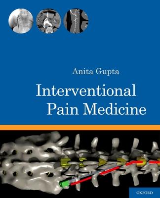 Interventional Pain Medicine - Gupta, Anita (Editor)