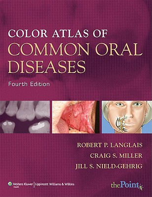 Color Atlas of Common Oral Diseases - Langlais, Robert P, Dds, MS, and Miller, Craig S, DMD, and Nield-Gehrig, Jill S, Ma