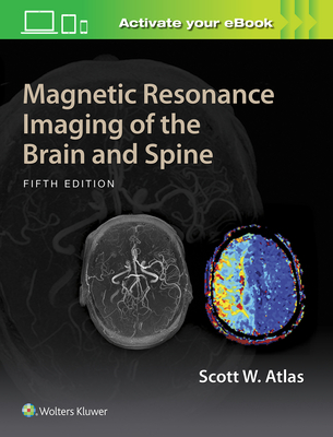 Magnetic Resonance Imaging of the Brain and Spine - Atlas, Scott W, M.D.