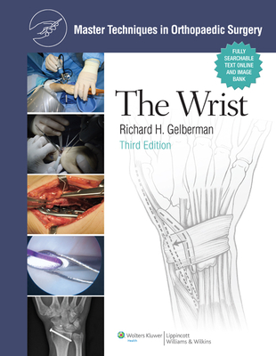 Master Techniques in Orthopaedic Surgery: The Wrist - Gelberman, Richard H, MD (Editor)
