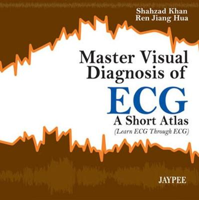 Master Visual Diagnosis of ECG: A Short Atlas (Learn ECG through ECG) - Khan, Shahzad, and Hua, Ren Jiang