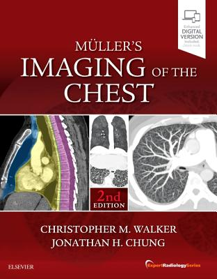 Muller's Imaging of the Chest: Expert Radiology Series - Walker, Christopher M., and Chung, Jonathan H.