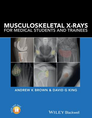 Musculoskeletal X-Rays for Medical Students and Trainees - Brown, Andrew K., and King, David G.