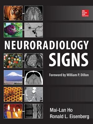 Neuroradiology Signs - Ho, Mai-Lan, and Eisenberg, Ronald L.