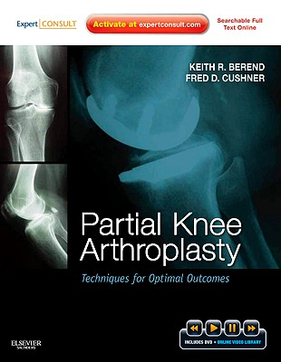 Partial Knee Arthroplasty: Techniques for Optimal Outcomes - Berend, Keith R, and Cushner, Fred