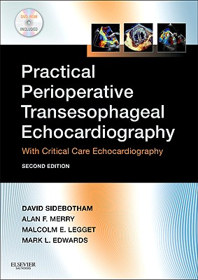 Practical Perioperative Transesophageal Echocardiography: Text with DVD-ROM - Sidebotham, David, and Merry, Alan, and Legget, Malcolm