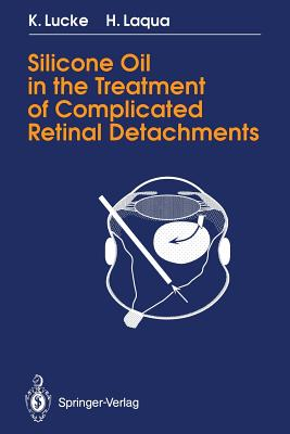 Silicone Oil in the Treatment of Complicated Retinal Detachments: Techniques, Results, and Complications - Lucke, Klaus