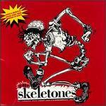 Skeletones