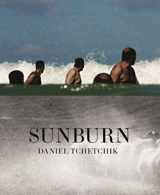 Sunburn - Tchetchik, Daniel (Photographer)