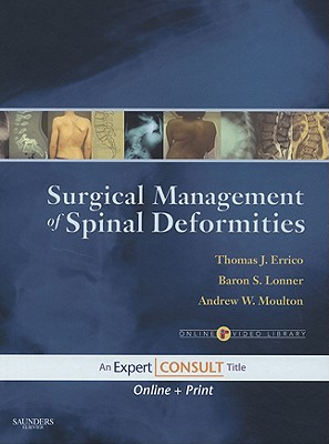 Surgical Management of Spinal Deformities - Errico, Thomas J, and Lonner, Baron S, MD, and Moulton, Andrew W