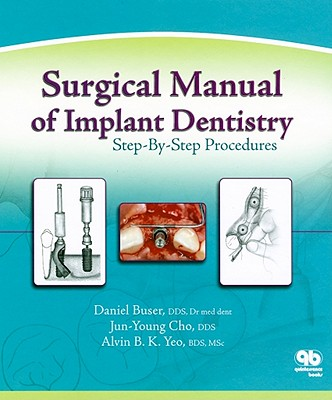 Surgical Manual of Implant Dentistry: Step-By-Step Procedures - Buser, Daniel