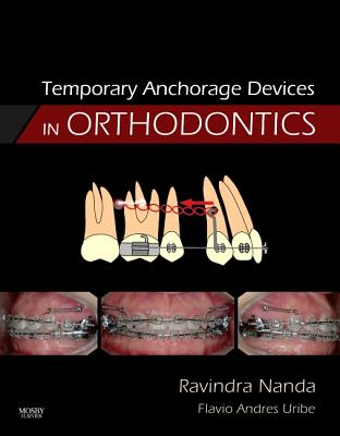 Temporary Anchorage Devices in Orthodontics - Nanda, Ravindra, PhD