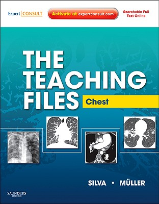 The Teaching Files: Chest: Expert Consult - Online and Print - Muller, Nestor L., MD, PhD, and Silva, C. Isabela S.