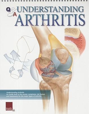 Understanding Arthritis Flip Chart - Scientific Publishing