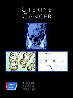 Uterine Cancer - Fuller, Arlan