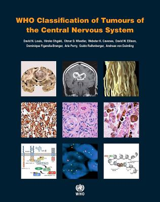 Who Classification of Tumours of the Central Nervous System - International Agency for Research on Cancer